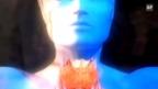 Video «Schilddrüse: Zeichen einer Überfunktion» abspielen