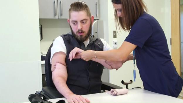 Video «Arm-Transplantation statt Prothese» abspielen