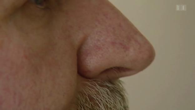Video «Warum haben Männer grössere Nasen?» abspielen