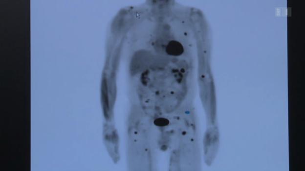 Video «Neue Hoffnung: Immuntherapie gegen Krebs» abspielen