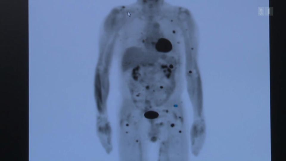 Neue Hoffnung: Immuntherapie gegen Krebs