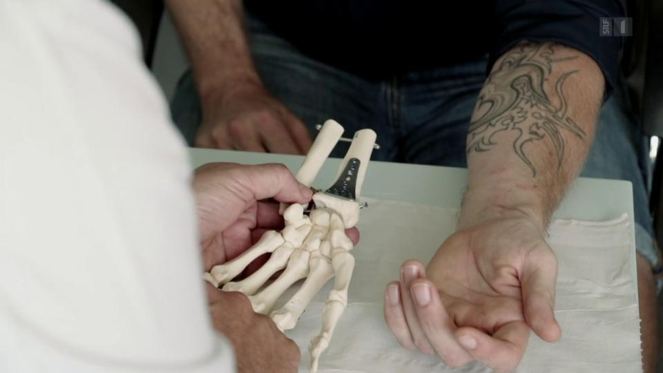 Handchirurg Stefan Wohlgemuth: «Viele Ärzte können es sich überhaupt nicht vorstellen.»
