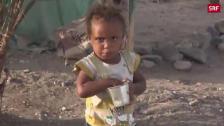 Link öffnet eine Lightbox. Video Hungersnot im Jemen abspielen