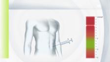 Video «Die Rolle des Insulins im Körper» abspielen