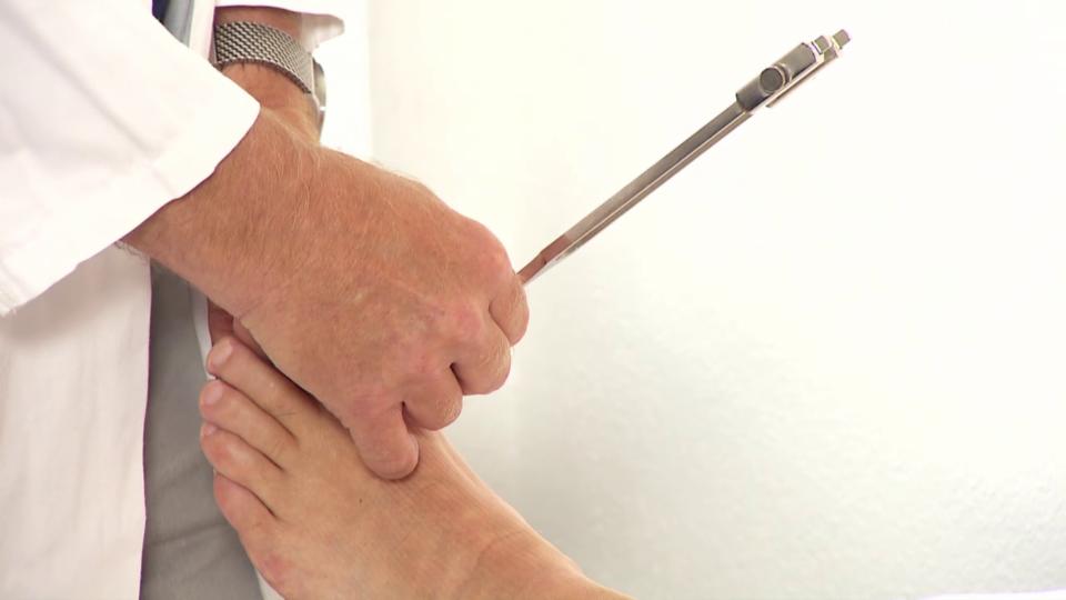 Polyneuropathie - Viele Symptome, oft unklare Ursachen