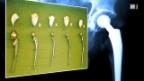 Video «Abrieb im künstlichen Gelenk - Partikel im natürlichen Gewebe» abspielen