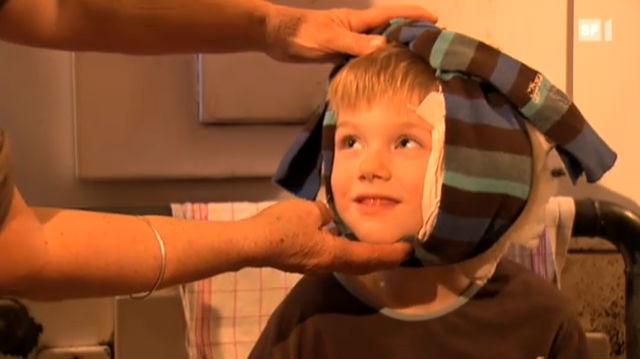 «Hausmittel aus Grosis Zeiten»: Zwiebelwickel gegen Ohrenweh