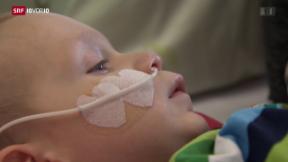 Video «Wieso sich ein nationales Krebsregister lohnt» abspielen