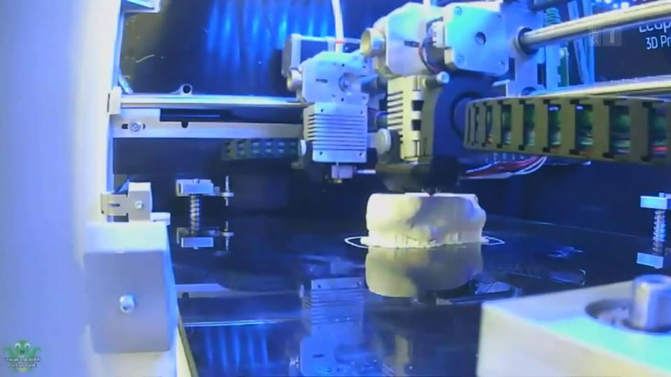 Schienbein aus dem 3D-Drucker