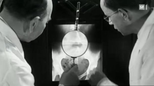 Video «Die Tuberkulose ist einfach nicht auszurotten» abspielen