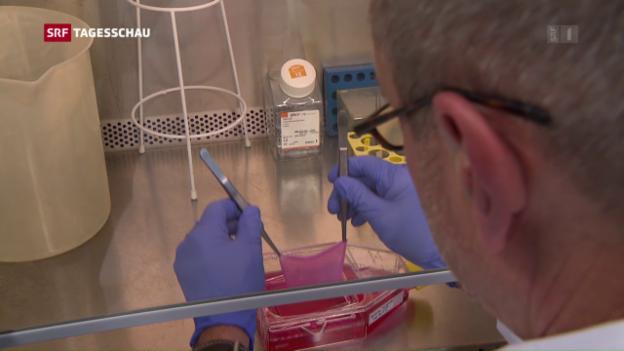 Video «Hautersatz aus dem Labor» abspielen