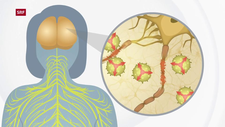 So funktioniert MS: Das körpereigene Immunsystem zerstört die Schutzschicht der Nervenzellen und schränkt die Signalübertragung ein.