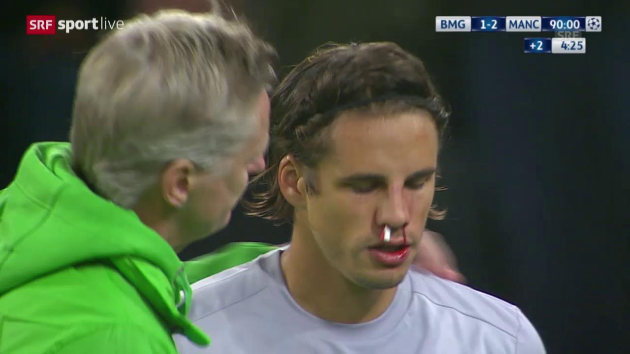 Fussball: Champions League, 2. Spieltag Gruppe D, Gladbach - Manchester City, Yann Sommer nach Zusammenprall mit blutiger Nase