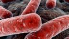 Video «Tuberkulose» abspielen