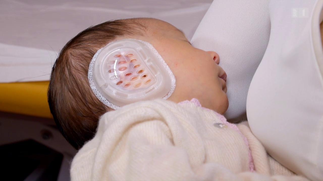 Ohrenkorrektur bei Babys