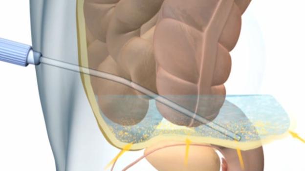 Video «Lebensrettung für Nierenkranke» abspielen