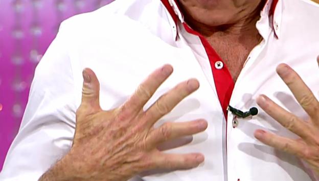 Video «Rolf Knie über den Schuss durch seinen Finger» abspielen