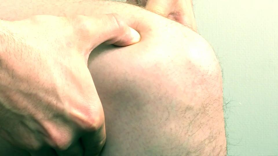 Akupressur dämpft Arthrose-Schmerzen
