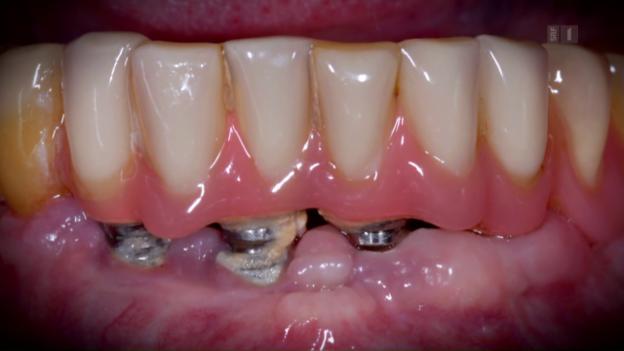 Video «Zahnimplantate: Immer der Zahnersatz der Wahl?» abspielen