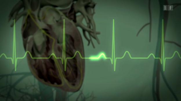 Video «Herzschrittmacher» abspielen