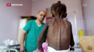 Video «Jemen – die grösste humanitäre Katastrophe» abspielen