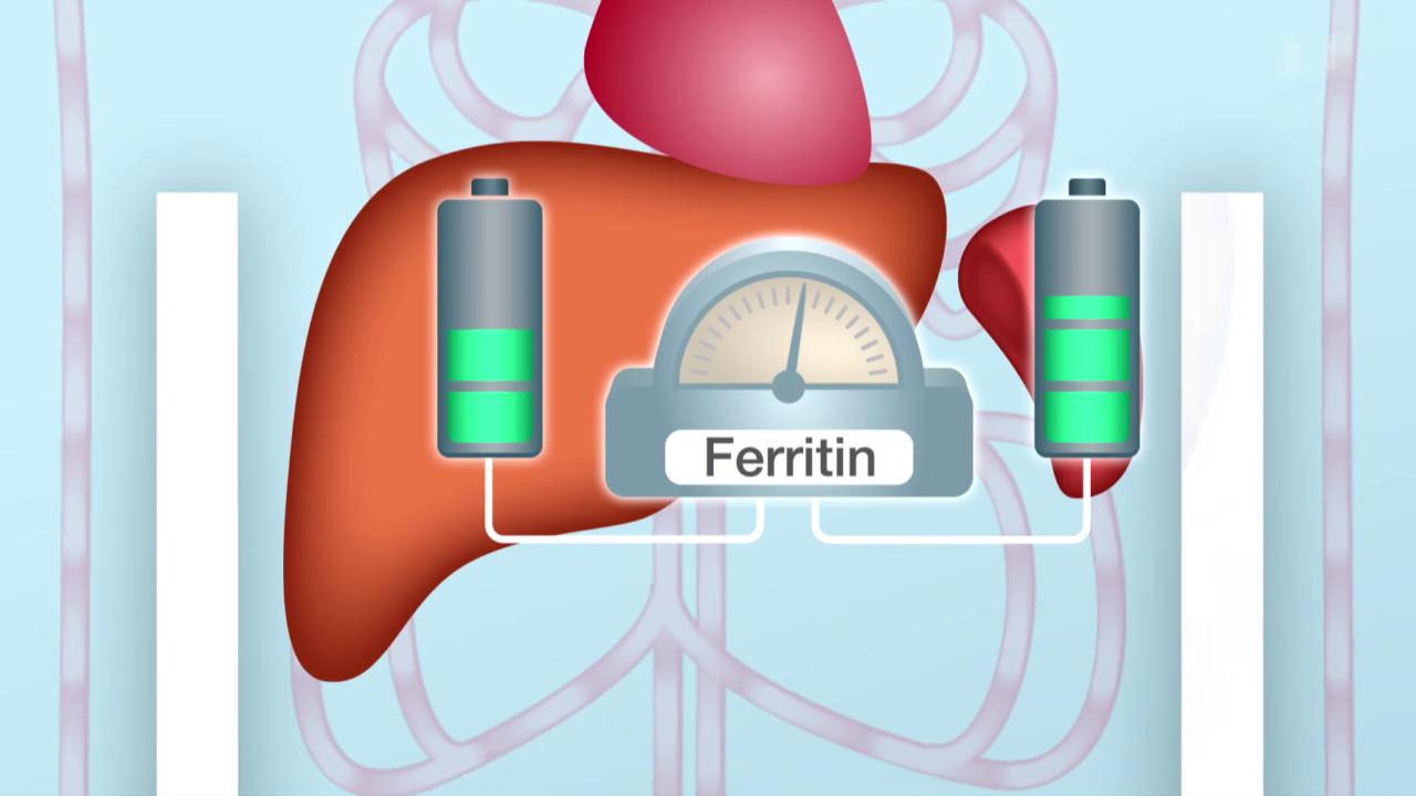 Lifestyle - Eisenmangel – Vorbeugen mit richtiger Ernährung - Puls - SRF