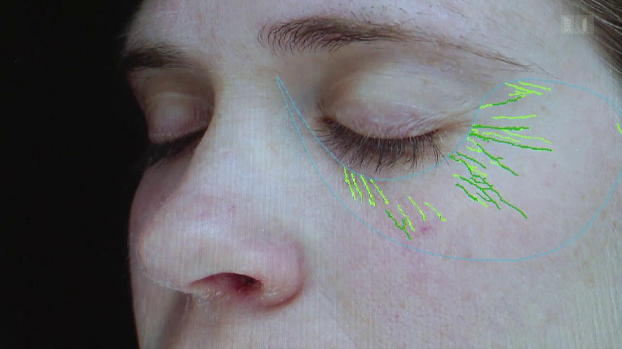 Falten - was hilft gegen die Zeichen der Hautalterung?