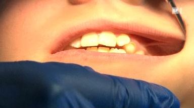 03.11.09: Teure Zahnspangen: Grosse Preisunterschiede
