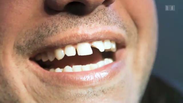 Zahnunfall in der Badi
