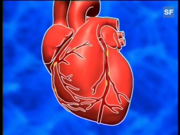 Video «Dossier Herz» abspielen