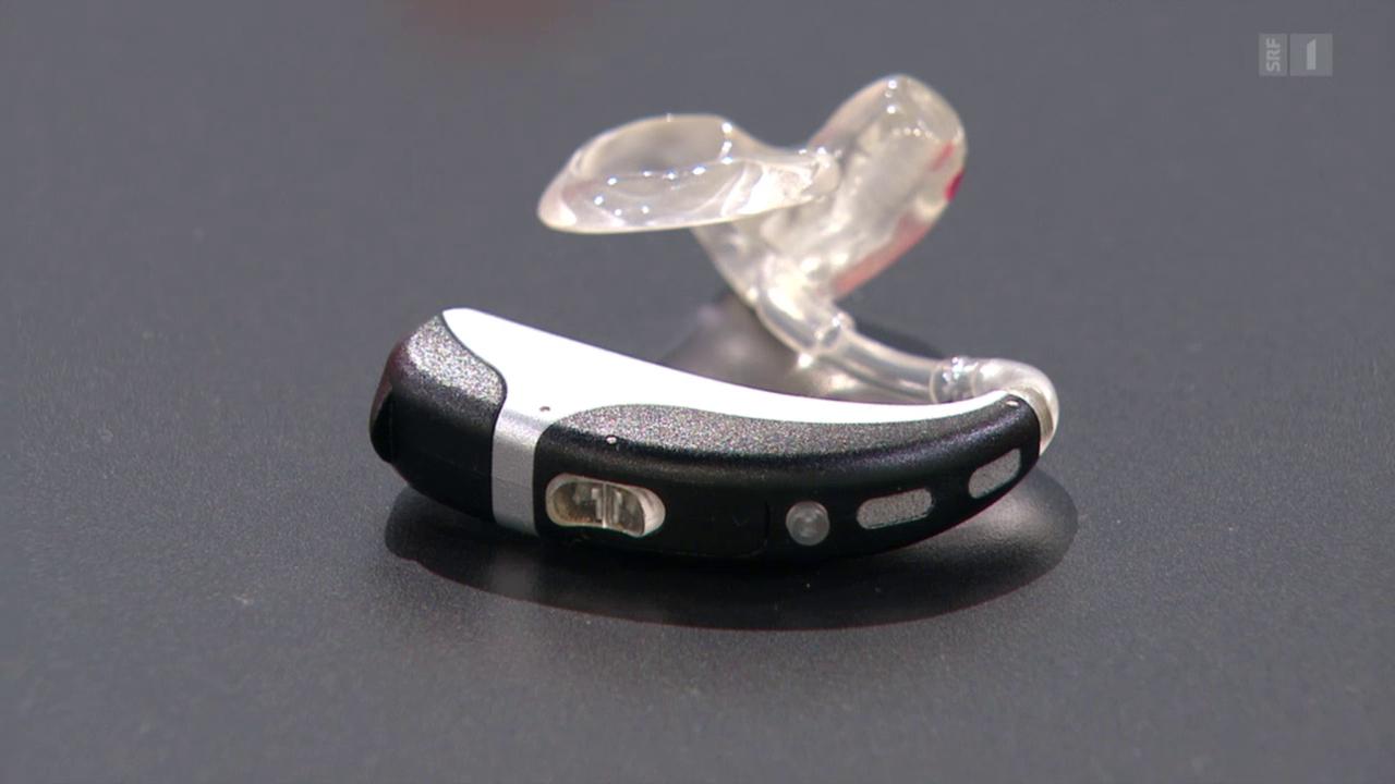 Hörgeräte – was können die kleinen Geräte, wann machen sie Sinn?