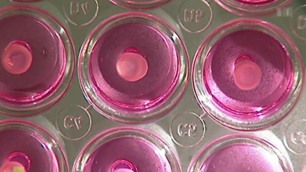 Video «Niere aus dem Labor» abspielen