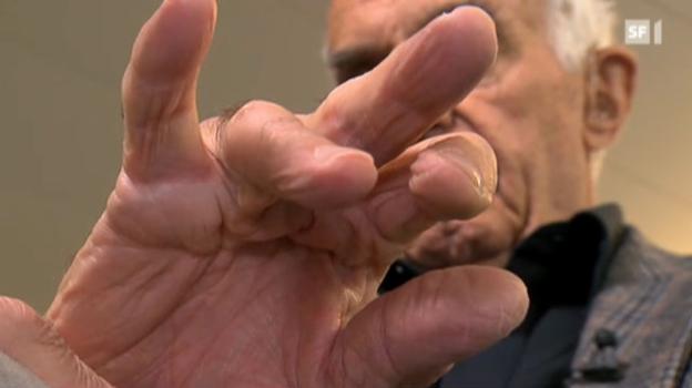 Video «Neue Behandlungsmethode löst unbewegliche Finger» abspielen