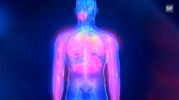Video «Herzinfarkt: Wie es dazu kommt und wie er sich bemerkbar macht» abspielen