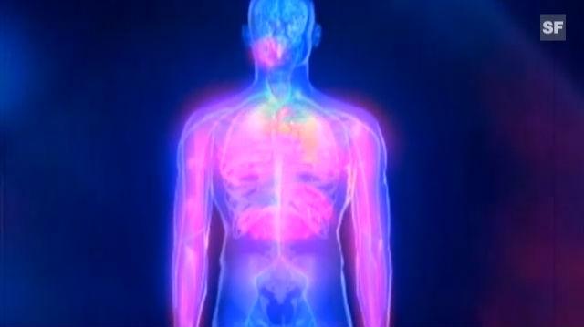 Infarkt-Ursachen und Symptome
