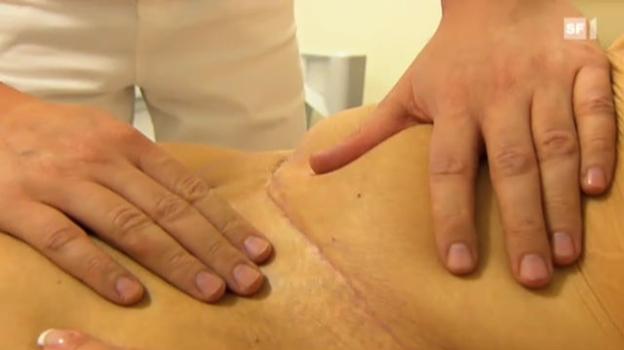 Video «Operation geglückt – Patientin zufrieden?» abspielen