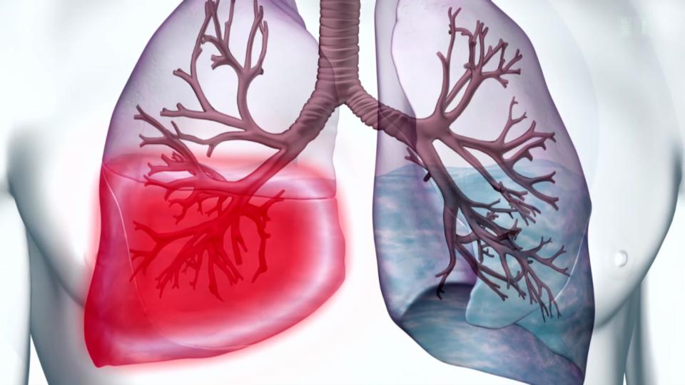 Risiko Lungenentzündung