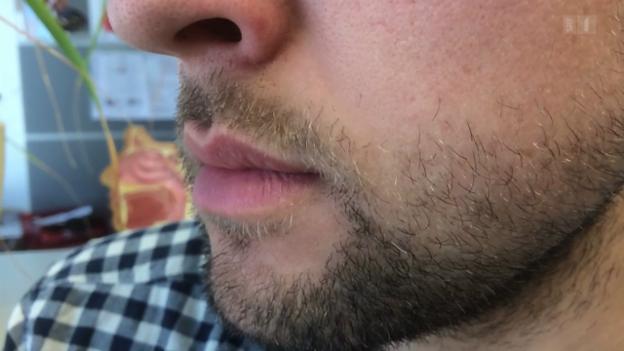 Video «Summen gegen Tinnitus» abspielen