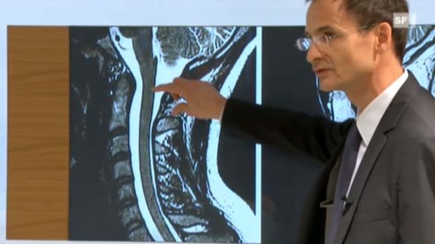 Video «Mit einer Operation die Lähmung verhindern» abspielen
