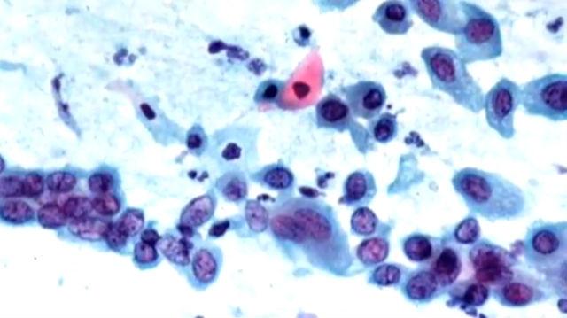 Chlamydien-Infektion - Trotz Häufung kein Routinecheck