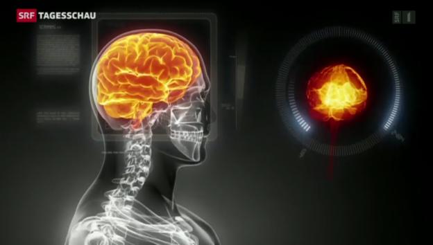 Video «Super-Computer sollen menschliches Hirn simulieren» abspielen