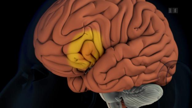 Video «Was spielt sich beim Stimmenhören im Gehirn ab?» abspielen