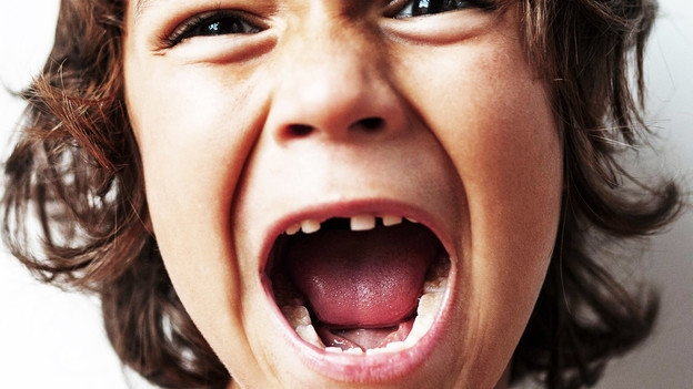 Video «Zahnunfall – Richtiges Verhalten kann die Beisserchen retten» abspielen