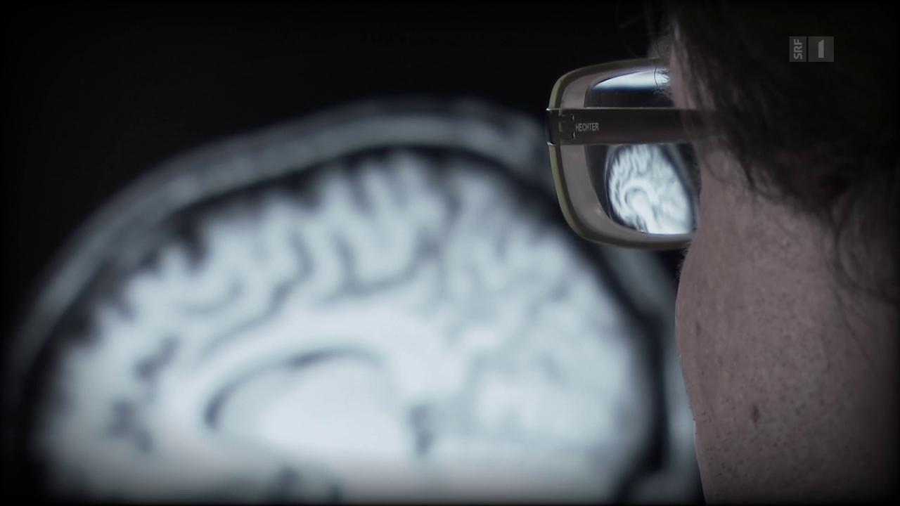Demenz durch Schädel-Hirn-Trauma