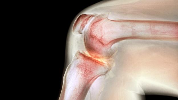 Video «Knie-Arthrose – Was hilft wirklich?» abspielen