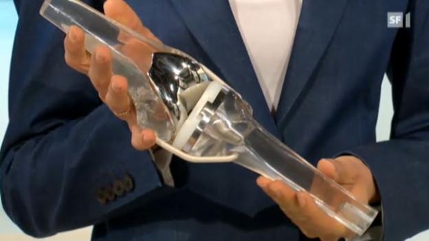 Video «Das künstliche Kniegelenk – Wunsch und Wirklichkeit» abspielen