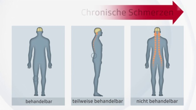 Video «Umgang mit chronischen Schmerzen» abspielen
