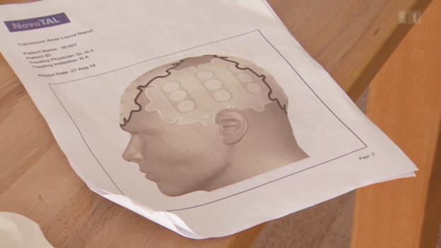 Video «Mit Strom gegen Hirntumore» abspielen