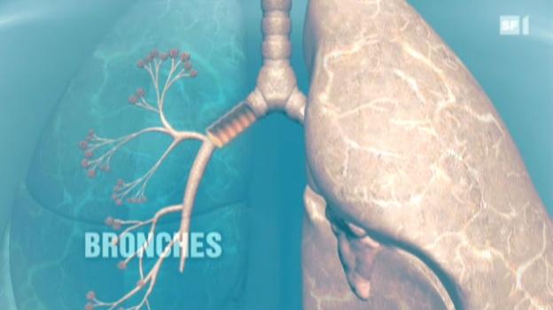 Video «Weltweit erste Bronchien-Transplantation» abspielen