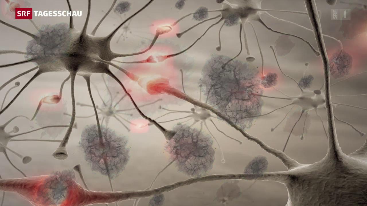 Neue Hoffnung für Alzheimer-Patienten